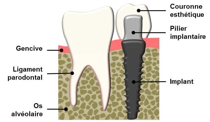 Un implant dentaire est une racine artificielle, visée de manière définitive dans l'os alvéolaire. Il a pour but de remplacer la racine d'une dent abîmée ou manquante et sert de support de fixation à une couronne en céramique.
