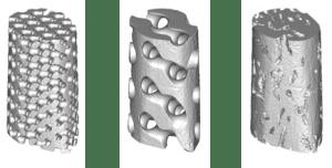 Modèles CAO d'implant avec différentes architectures