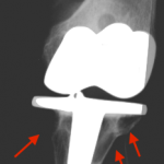 Xray image showing osteolysis below a knee prosthesis
