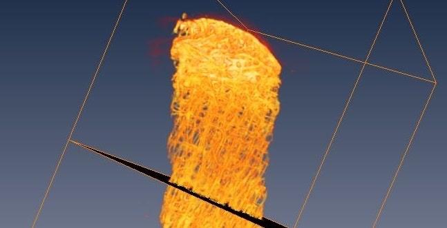 Reconstruction 3D d'un plug osteochondral